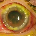 Amoeba Eats Eyeballs