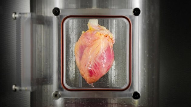 lab grown human heart
