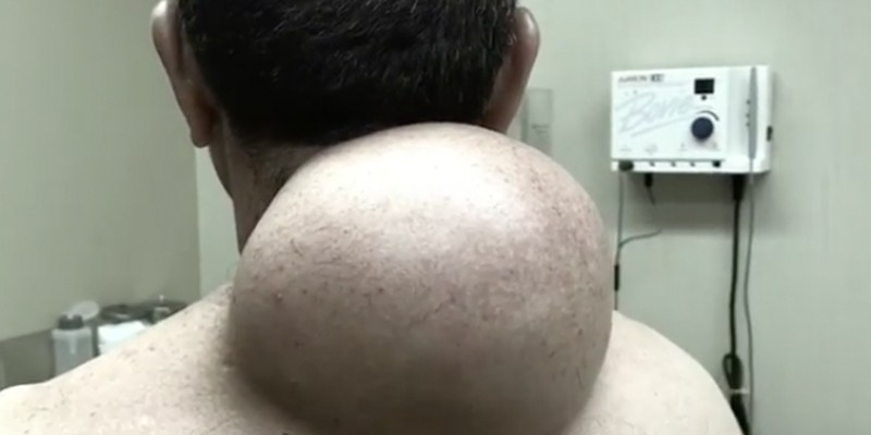 Dr Pimple Popper's Gross Medical Videos