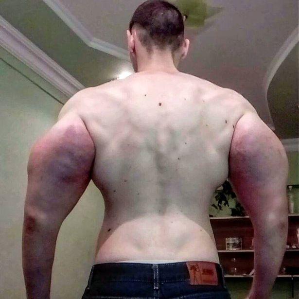 strange biceps
