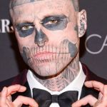 Zombie Boy commits suicide