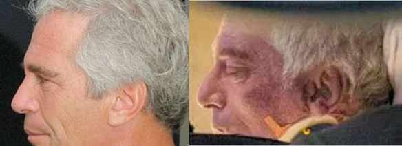 epstein alive dead facial comparison