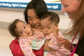 Conjoined Bhutanese twins separated in Melbourne
