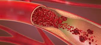 Higher iron levels could protect arteries but raise clot risk