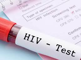 HIVAIDs claim 10 lives as 837 positive cases registered