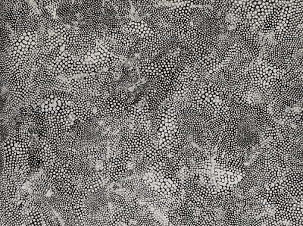 """A blown up microscopic image of black and white """"dots."""""""