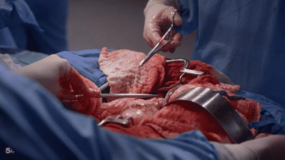 jo wraps up surgery
