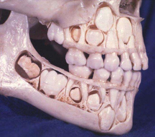 bebek dişlerini kaybetmeden önce insanlar