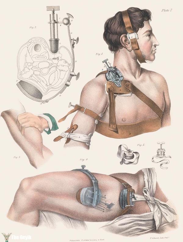 19. yydan cerrahi çizimler 2