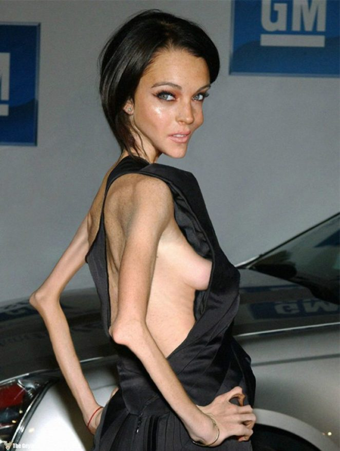 Anorexic-Celebrities-57215f1674250__880