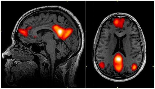 Beynin varsayılan ağ modunu gösteren fMRI taraması. ohn Graner, National Intrepid Center of Excellence, Walter Reed National Military Medical Center, Bethesda, MD.