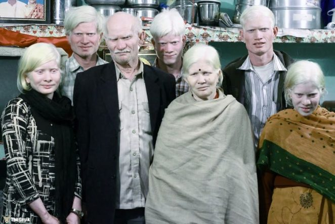 albinoaile