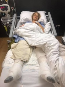 the girl on a bike accident