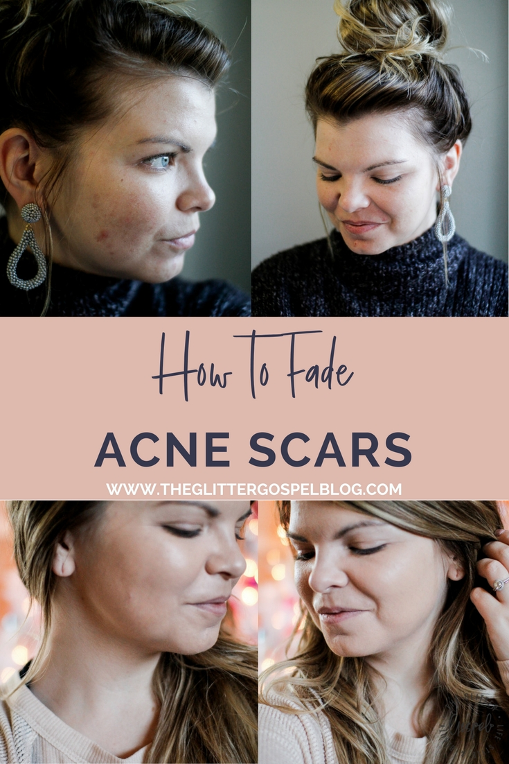 How to fade your acne scarring. PMD Beauty Microdermabrasion, Skincare, Acne treatment, microderm, PMD, the glitter gospel, winter skin care