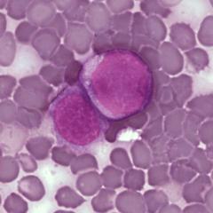 Benzene, Leukemia and Lymphoma