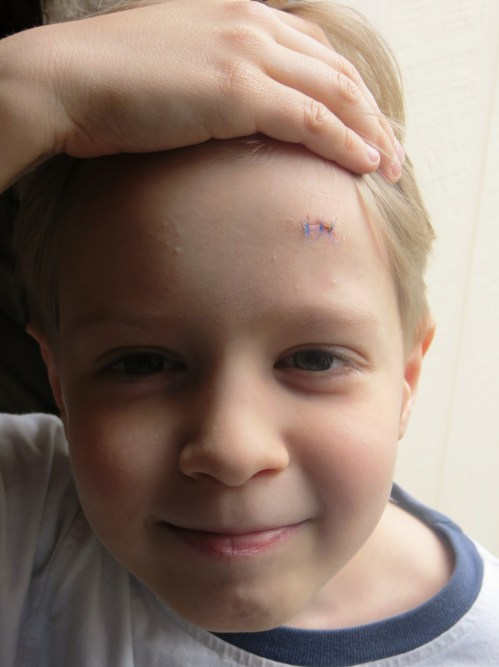 Our first trip to the Urgent Care Center ever. 3 Stitches on 1 Brave Boy.