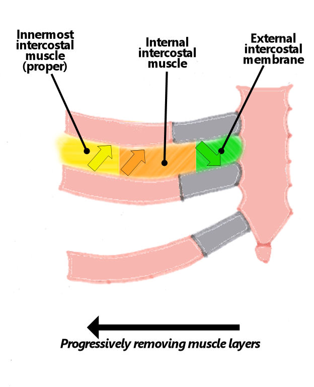 Intercostal Muscles Damaged