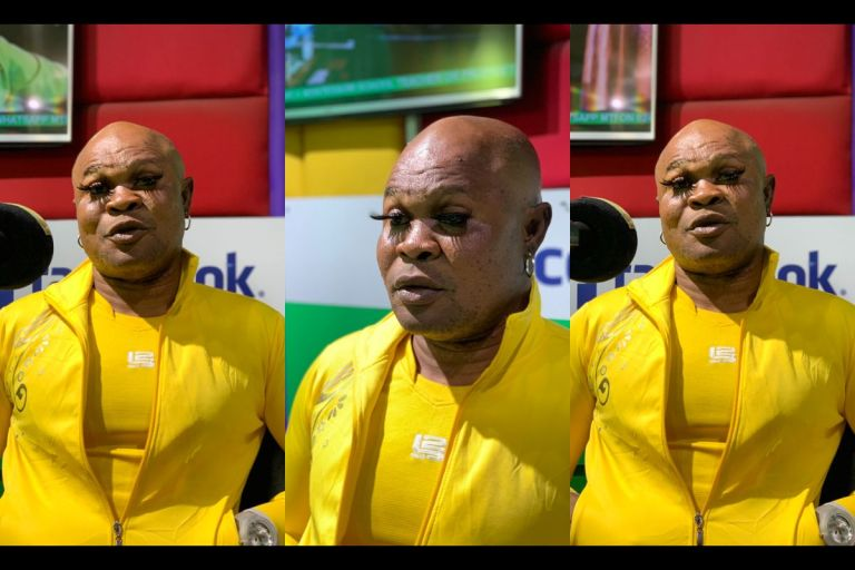 New Disturbing And Scary Photos Of Excessively Bleached Bukom Banku Hit Online