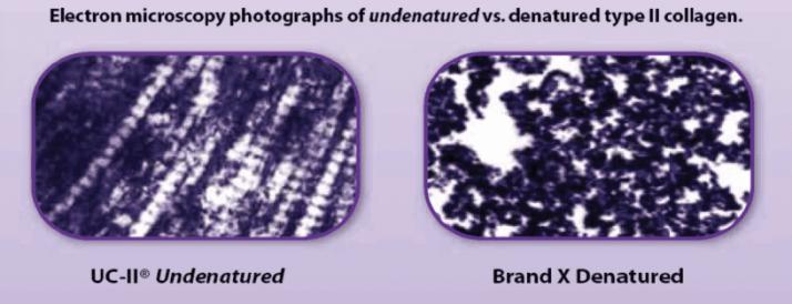 非變性二型膠原蛋白UC-II推薦品牌