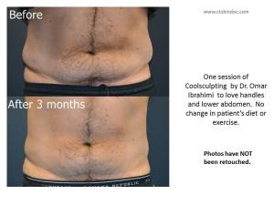 coolsculpting-male-stamford-ct-lovehandles-before-after