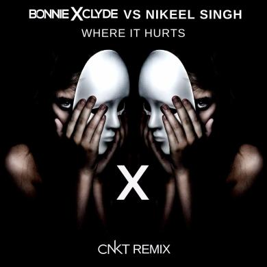 Bonnie X Clyde Nikeel Singh Where It Hurts CNKT Remix