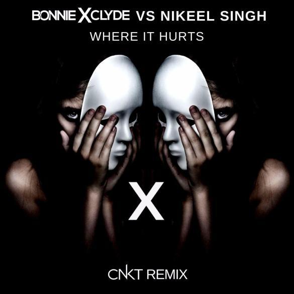 Bonnie X Clyde Nikeel Singh Where It Hurts CNKT Remix