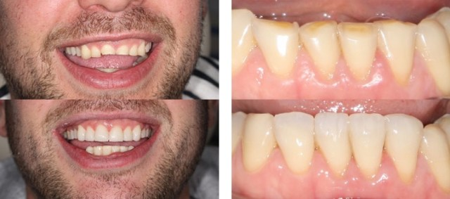 Before & after of composite bonding at The Guild Practice