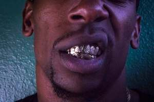 Man baring teeth to show his gold grills after cosmetic dentistry Glasgow