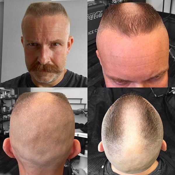 18 The flat-top inspired