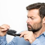 8 Main causes of hair loss in men.