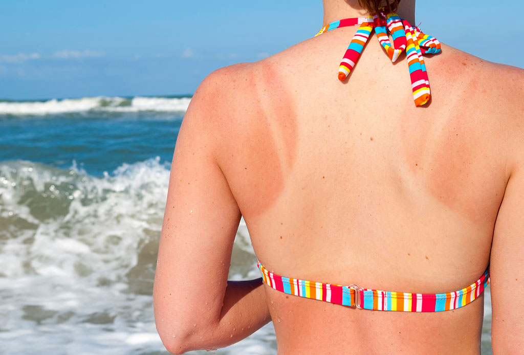 10 after-sun creams para no sufrir los estragos del Sol