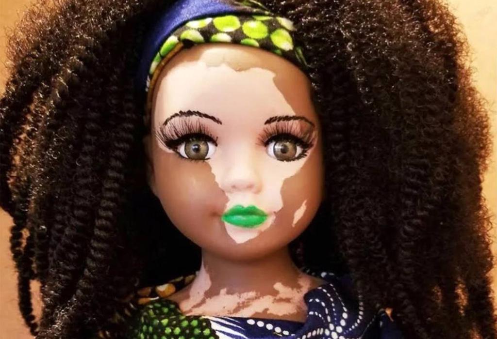 Conoce las primeras muñecas con vitiligo