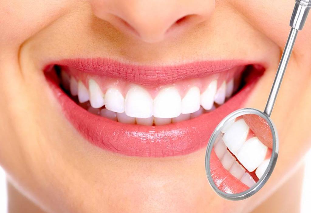 Antes de que te pongas carillas en los dientes debes saber esto - dientess