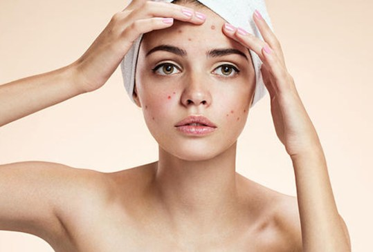 Deberías agregar el aceite de jojoba en tu rutina skincare - beneficios-en-tu-piel-aceite-de-jojoba-4-300x203