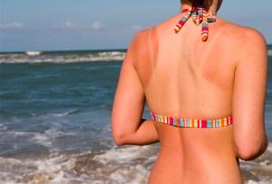 6 cosas que debes hacer si te quemas demasiado bajo el sol