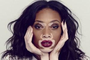Esta crema promete revertir las condiciones de piel con vitiligo