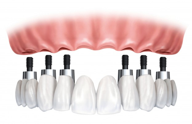Tooth Implants: Don't Even Think About Having Them!