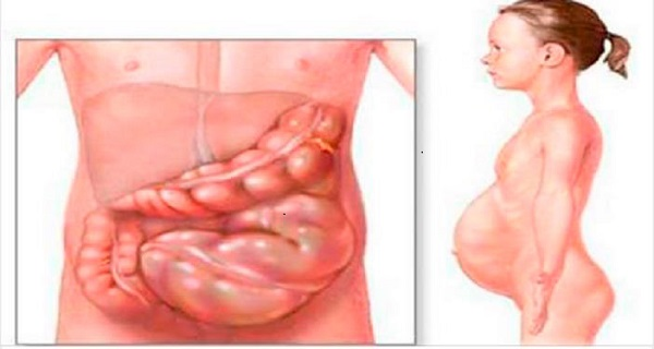 Cure Gastroparesis And Gastritis In A Natural Way Using These Remedies