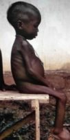 https://commons.wikimedia.org/wiki/File:Starved_girl.jpg