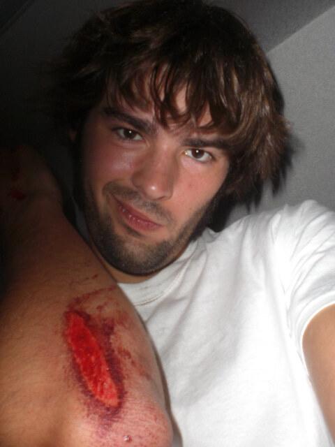 Derek Freal got injured while drunk in Tokyo