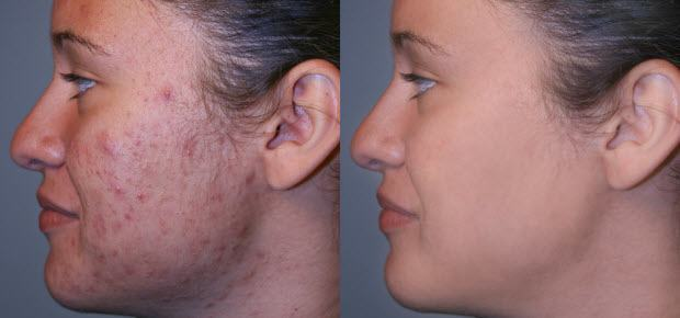 micordemabrasion before and after