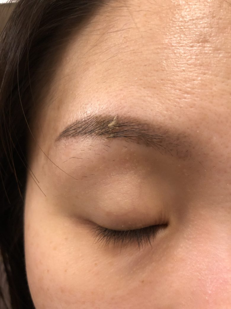 skin scabbing after eyebrow embroidery