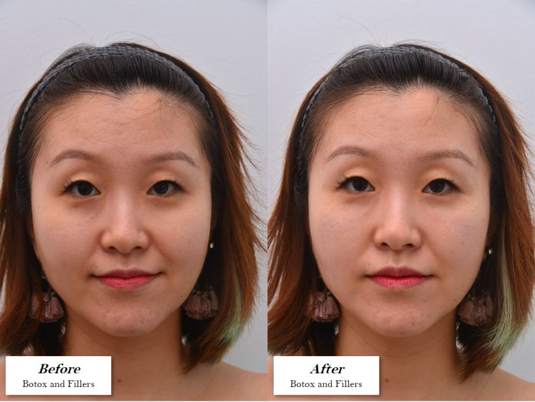 botox and fillers before and after photos