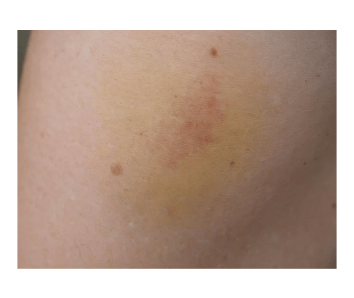 gua sha, bruise on skin