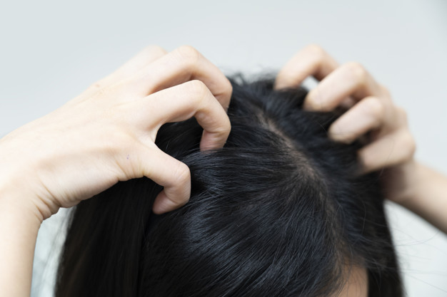 close-up-woman-hand-scratching-her-itchy-hair