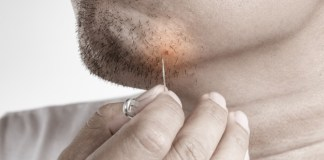 10 Best Ways to Get Rid of Ingrown Hairs Safely