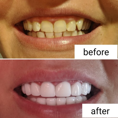 Before and After Veneers Dental Center Turkey