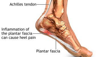 3 Habits for Healing Plantar Fasciitis