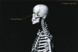 Exhibit-396-Graphic-Skeleton-Parietal-Defect-1024x684