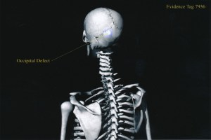 Exhibit-399-Graphic-Skeleton-Occipital-Defect-1024x683